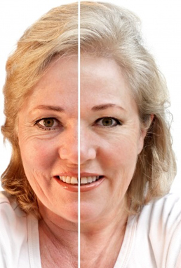 Effects of Photo Rejuvenation, Anti Aging