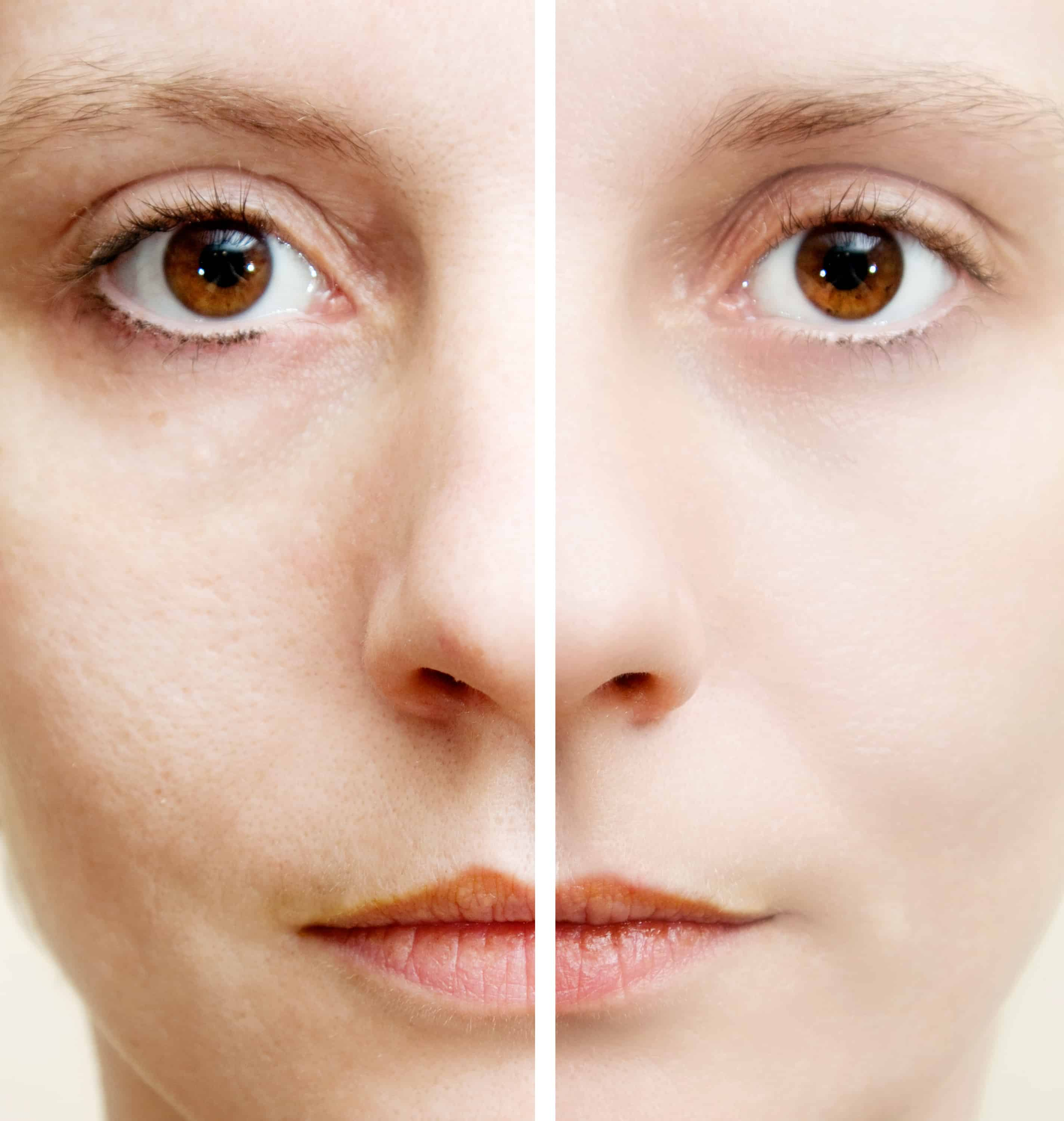 Difference with Microdermabrasion treatment